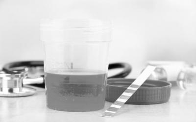 ¿Por qué las empresas deberían aplicar pruebas de detección de drogas?